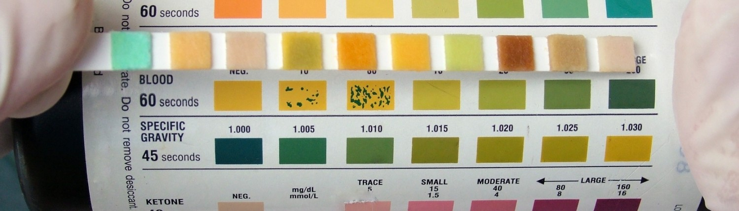 Myth #4: You Can Test Your Urine to Determine Whether You're Acidic